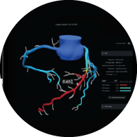 3D image of a heart with the HeartFlow FFR-CT Analysis